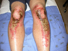 Full thickness burns to the legs caused by kneeling in cement