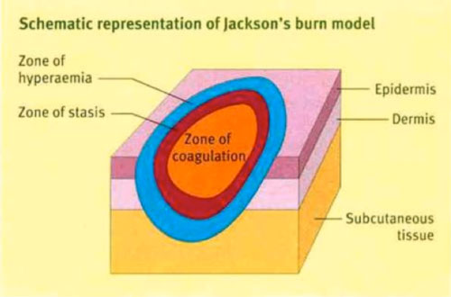 img-jacksons-burn-wound-model