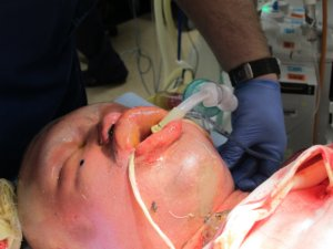Facial and neck swelling is a risk to airway patency (Copy)