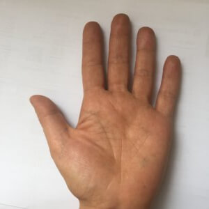 The Palmar Surface of the patients hand is equivalent to 1%TBSA (copy)