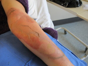 Aim to heal burn wound in less than 14 days to minimise scarring (copy)