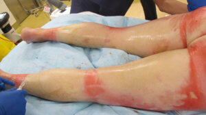 Bilateral circumferential leg burns is a 36%TBSA burn in an adult (copy)